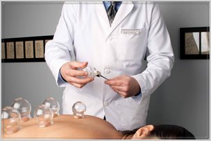 Cupping TCM Acupuncture Carlow RI 3
