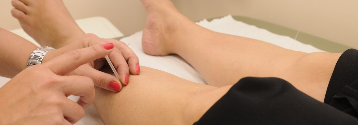 American Society of Acupuncture Position on Dry Needling