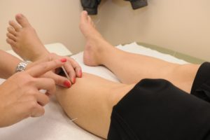 dry needling is acupuncture