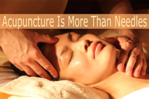 Acupuncture Is More Than Needles