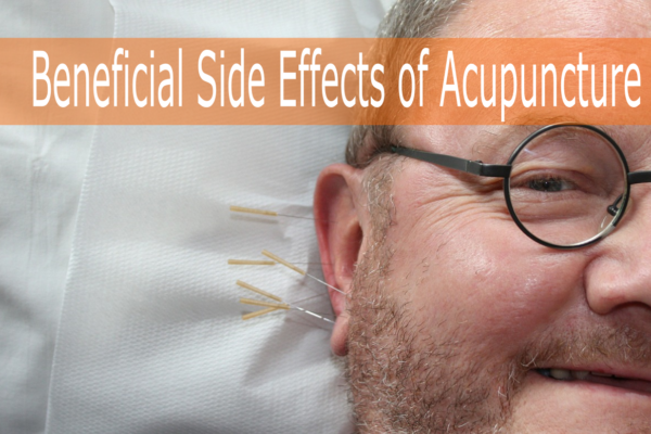 Beneficial Side Effects of Acupuncture