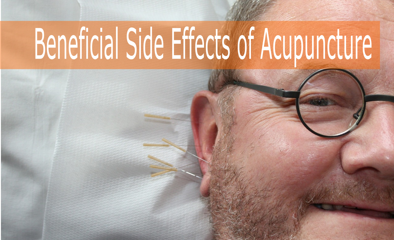 Beneficial Side Effects of Acupuncture Treatment