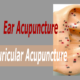 Have You Tried Ear Acupuncture?